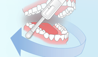 ORAL SWAB; AN EASY TECHNIQUEimage from ORAQUICK site