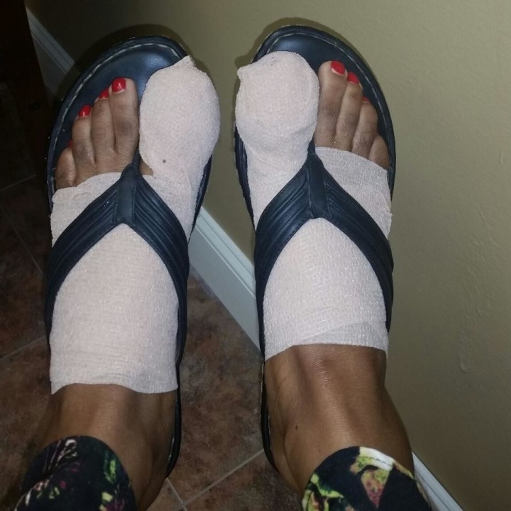 Matrixectomy Bandaged Feet