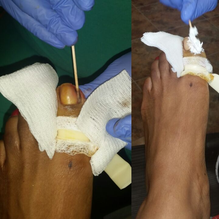 Matrixectomy - Nail Bed Treatment
